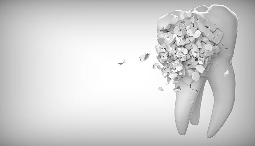 Sognare denti che cadono: Significato e Interpretazione dei Sogni